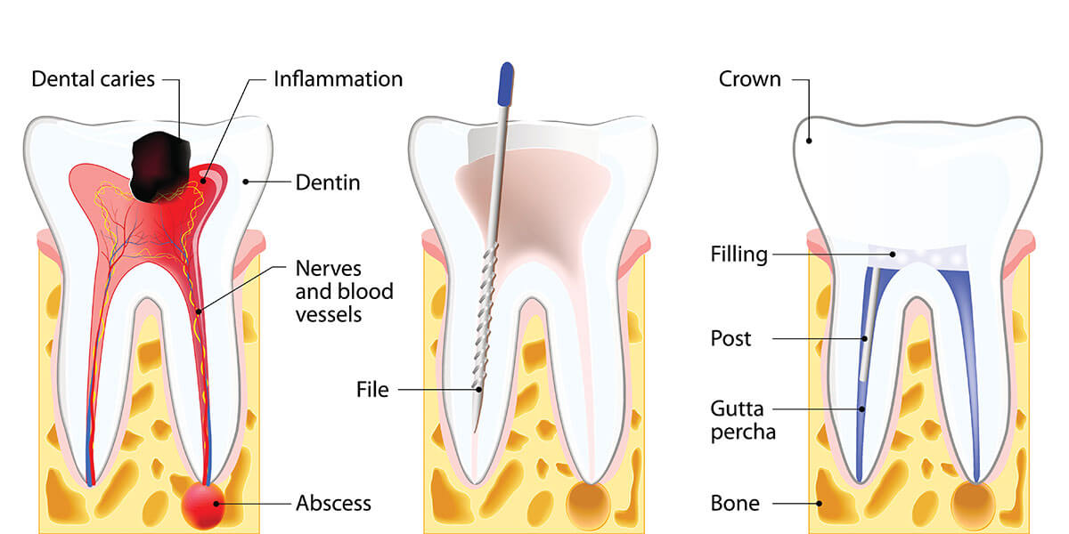 Root Canal Treatment in Fairfax, VA | Fairfax Endodontics